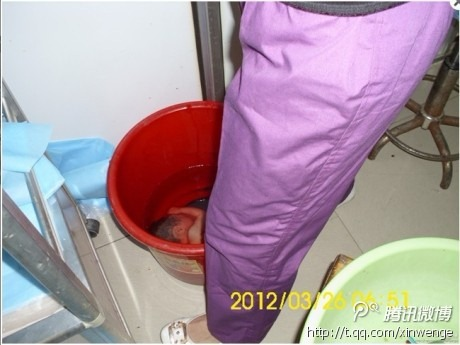 9-month-old-baby-aborted-china-one-child-policy1
